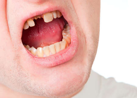 Young man face with broken tooth, closeup view isolated on white