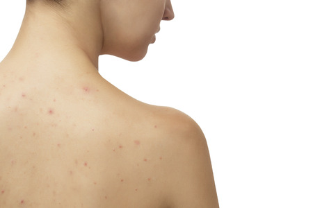 Young girl with skin problem (acne) on her back Stockfoto