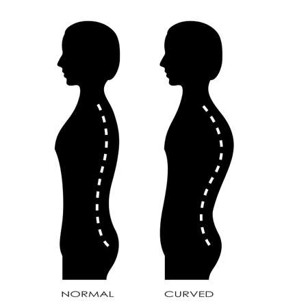 curvature: Spinal curvature Illustration