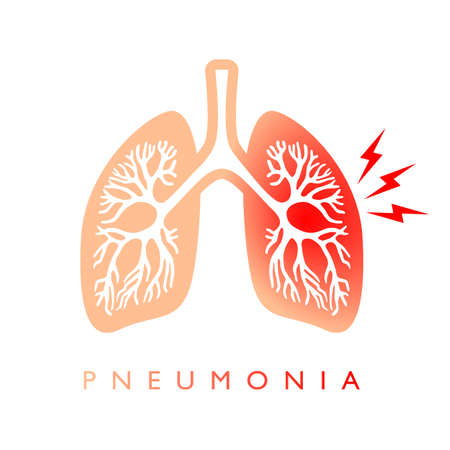 Lungs pneumonia vector icon isolated on white background