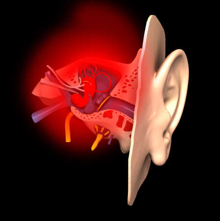 auditory: Sick ear Stock Photo