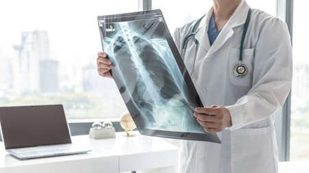 Doctor with radiological chest x-ray film for medical diagnosis on patient's health on asthma, lung disease and bone cancer illness, healthcare hospital service concept Stock Photo