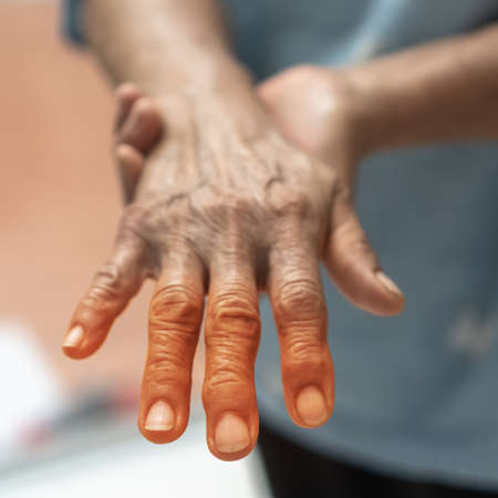 Peripheral Neuropathy pain in elderly ageing patient on hand, palm, fingers, joint and sensory nerves with numb, aching, muscle weakness, stabbing, burning or tingling sensory feeling
