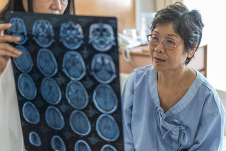 Brain disease diagnosis with medical doctor diagnosing elderly ageing patient neurodegenerative illness problem seeing Magnetic Resonance Imaging (MRI) film for neurological medical treatment 스톡 콘텐츠
