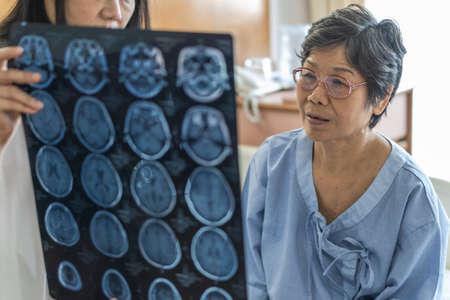 Diagnóstico de enfermedad cerebral con un médico que diagnostica el problema de la enfermedad neurodegenerativa del paciente anciano que ve la película de resonancia magnética (MRI) para el tratamiento médico neurológico