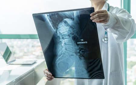 Lekarz chirurgiczny patrzący na radiologiczny film RTG kręgosłupa do diagnostyki medycznej na temat zdrowia pacjenta w chorobie kręgosłupa, chorobie raka kości, rdzeniowym zaniku mięśni, koncepcja opieki medycznej Zdjęcie Seryjne