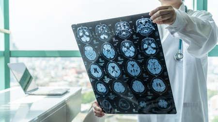 Brain disease diagnosis with medical doctor seeing Magnetic Resonance Imaging (MRI) film diagnosing elderly ageing patient neurodegenerative illness problem for neurological medical treatment Zdjęcie Seryjne
