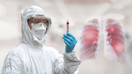 COVID-19, Coronavirus or Novel corona virus epidemic lung infection disease with doctor or lab technician scientist in PPE Personal Protective Equipment holding blood tube test in hospital laboratory