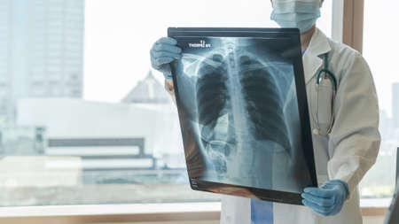 Doctor diagnosing patient's health on asthma, lung disease, COVID-19 or bone cancer illness with radiological chest x-ray film for medical healthcare hospital service Banco de Imagens