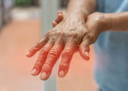 Peripheral Neuropathy pain in elderly patient on hand, palm, fingers and sensory nerves with numb, aching, muscle weakness, stabbing, burning from chronic inflammatory demyelinating polyneuropathy