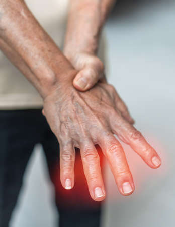 Peripheral Neuropathy pain in elderly patient on hand, palm, fingers and sensory nerves with numb, aching, muscle weakness, stabbing, burning from chronic inflammatory demyelinating polyneuropathy Stock Photo