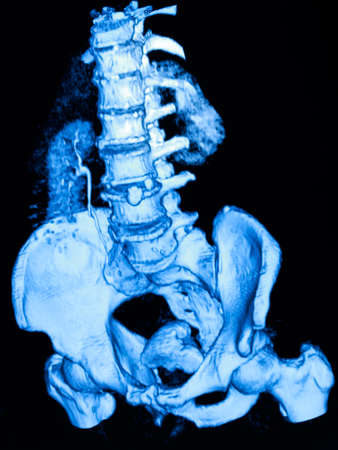renal: Image of CT scan renal and sacrum Stock Photo
