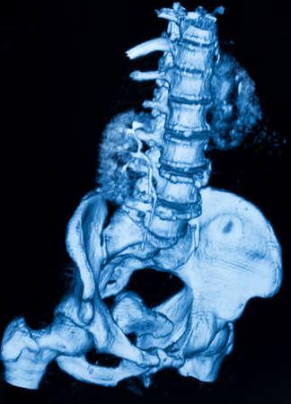 sacrum: Image of CT scan renal and sacrum Stock Photo