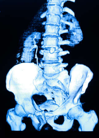 Image of CT scan renal and sacrum Stock Photo