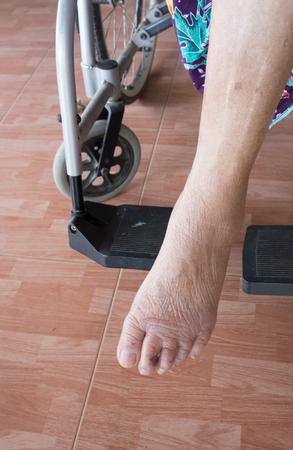 pauper: skin of elderly women over 80 years.