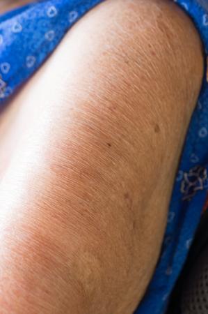 80 years: skin of elderly women over 80 years.