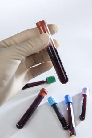 tubes, and blood samples taken with a hand protected by gloves Banco de Imagens - 12961569