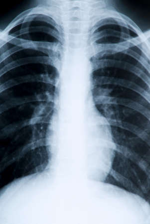 Chest radiograph shows extensive internal mass photo