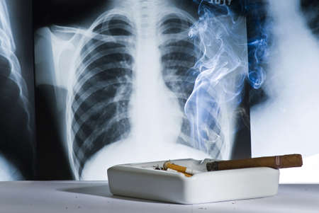 Chest x-ray shows the damage caused by smoking Stock Photo