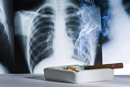 causaba: La radiograf�a de t�rax muestra los da�os causados ??por el tabaquismo Foto de archivo