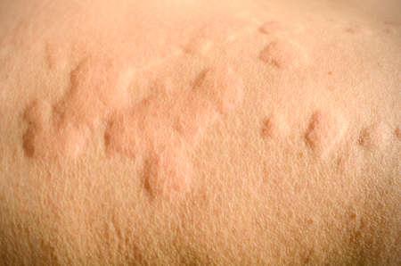 Eruption cutanée, urticaire, réaction allergique cutanée. Banque d'images - 78848289