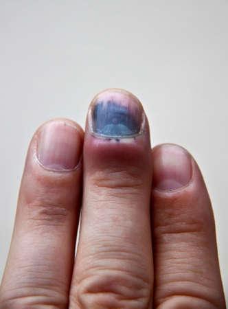 broken wrist: Dedo moretones y la sangre despu�s de un accidente