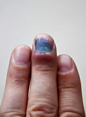 contusion: Finger bruise and blood after an accident