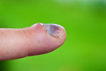 bruised: Bruised finger and damaged fingernail after an accident