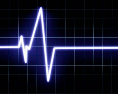 public hospital: Heart beat on clinic monitor