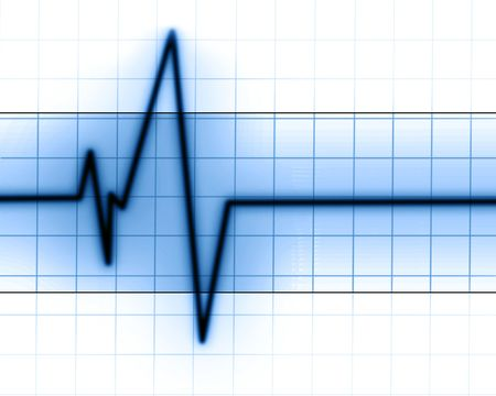 Heart beat on a clinic monitor