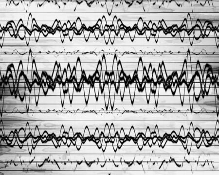 brain waves on a solid white background