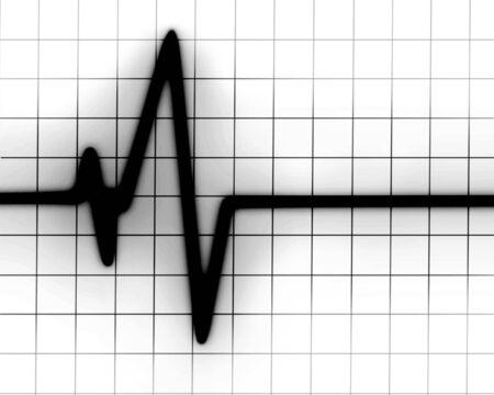 Latido del coraz�n en el monitor sobre un fondo blanco Foto de archivo - 5160736