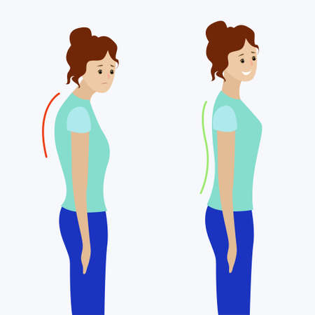 Two girls with a straight and curved spine Illustration