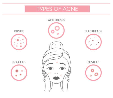 Types of acne, pimples nodules, papule, whiteheads, blackheads, pustule. Line vector elements on a white background