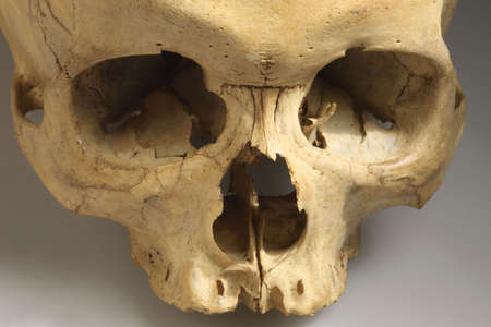eye socket: The real skull, this man died on 2008