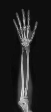 x-ray Stock Photo - 7786540