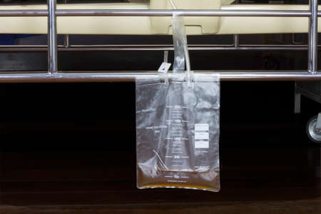 Urine bag hanging beside the patients bed. Inside the hospital room