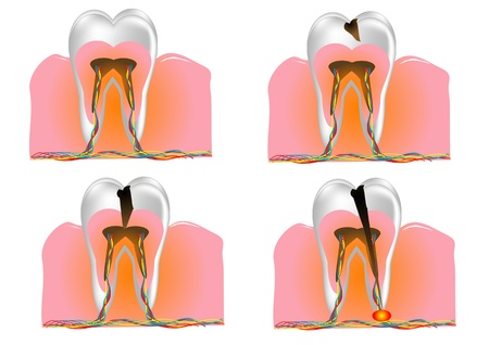 internal structure of the tooth  10 EPS Stock Vector - 18541376