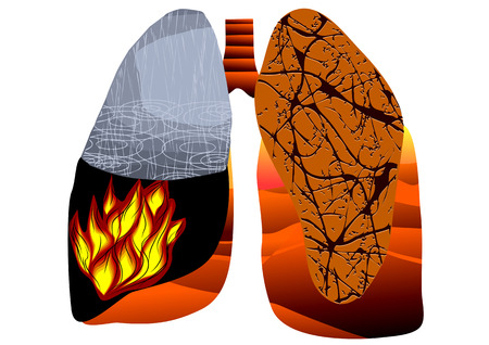 tuberculosis. abstract human lung isolated on white Vector