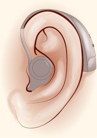 audífono. oído humano con un audífono