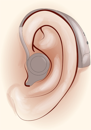 amplification: hearing aid. human ear with a hearing aid