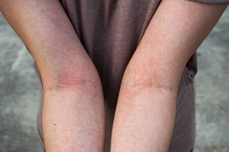 Allergy is a red rash on the body.