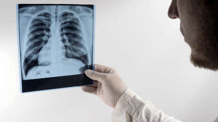 X-ray of a person's lungs in the hands of a doctor, a picture of the lungs, pneumonia. The doctor makes an analysis of a picture of the lungs