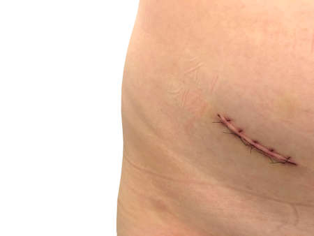 Surgery wound from appendix removal operation isolated on white background Stock Photo
