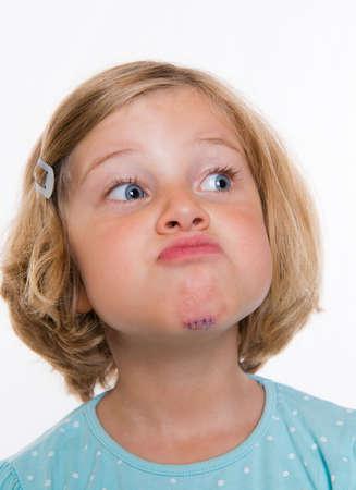 herida: blanco niña con la herida cosida en la cara