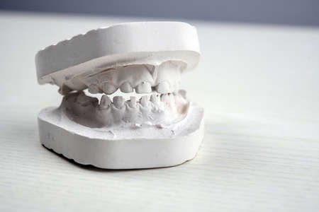 plaster model  of teeth on bright ground