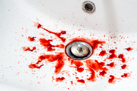 Red blood on the white sink in bathroom Standard-Bild