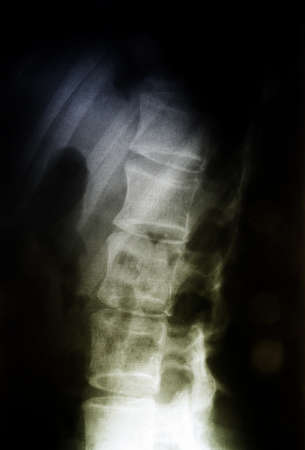 X-ray of the spinal column. photo