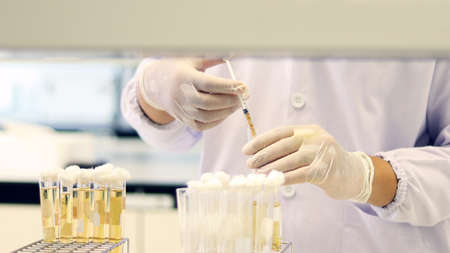 Scientist transfer sample using syringe, Most Probable number (MPN) technique for counting the Coliform bacteria cultured with Tryptose Lauryl broth in Test-tube yellow solution for analysis disease. Stock Photo