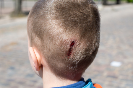 Een jonge jongen met een kleine wond op zijn hoofd insury Stockfoto